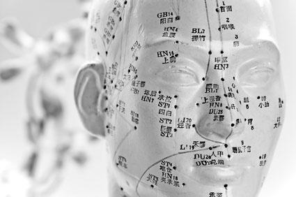 Akupunktur Pankow