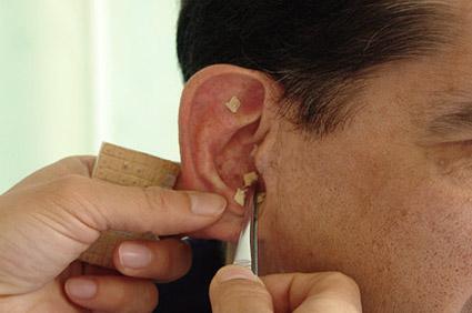 Ohrakupunktur und Akupunktur Pankow